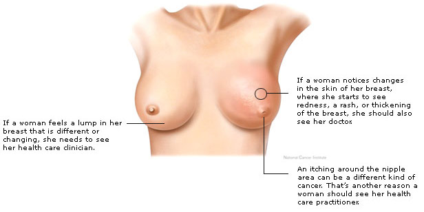 Symptoms_Of_Breast_Cancer_In_Females