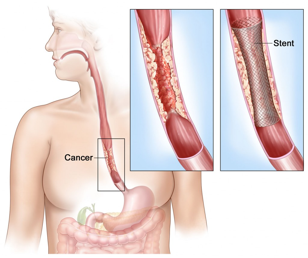 esophageal-cancer