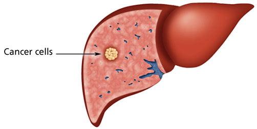 liver-cancer