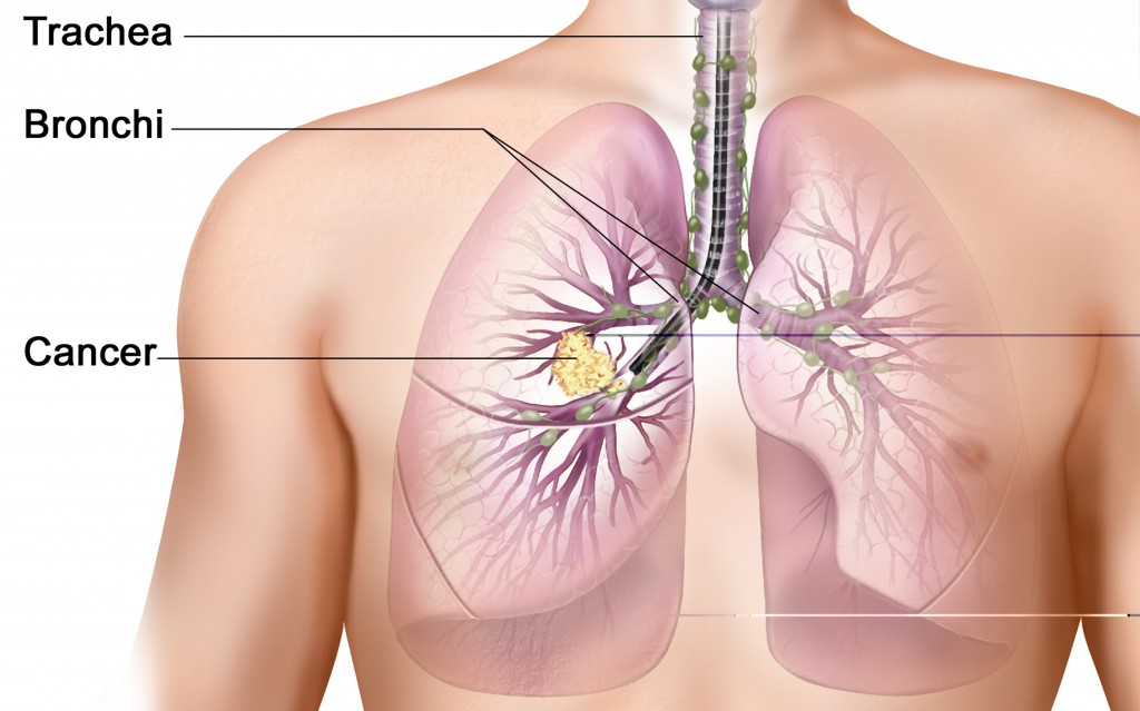an analysis of the lung cancer effects symptoms and prevention for the disease