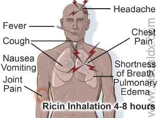 ricin_poisoning_inhaled