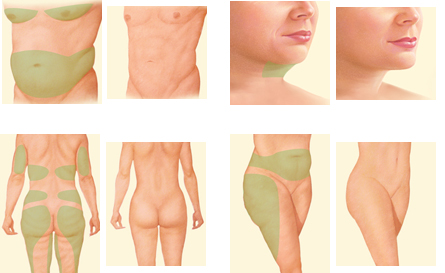Are You Ready to Transform Your Life with a Body Lift Procedure?