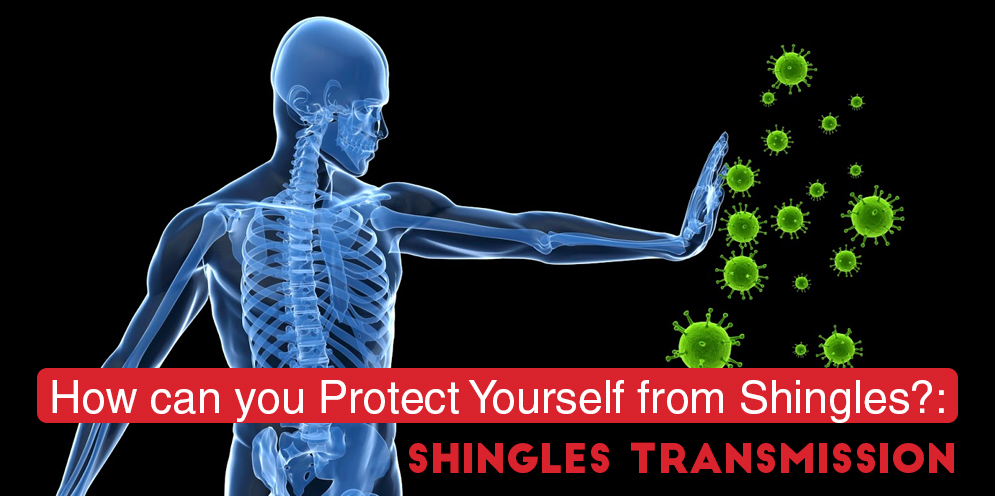 How Can You Protect From Shingles
