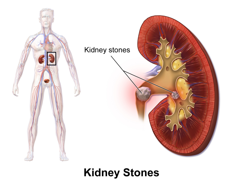 The Symptoms of Kidney Stones and How to Prevent Them from Building up